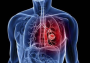 武汉市卫健委通报肺炎疫情,尚未发现人传人