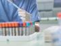 神农架新增一例新冠肺炎确诊病例 潜伏期长达27天